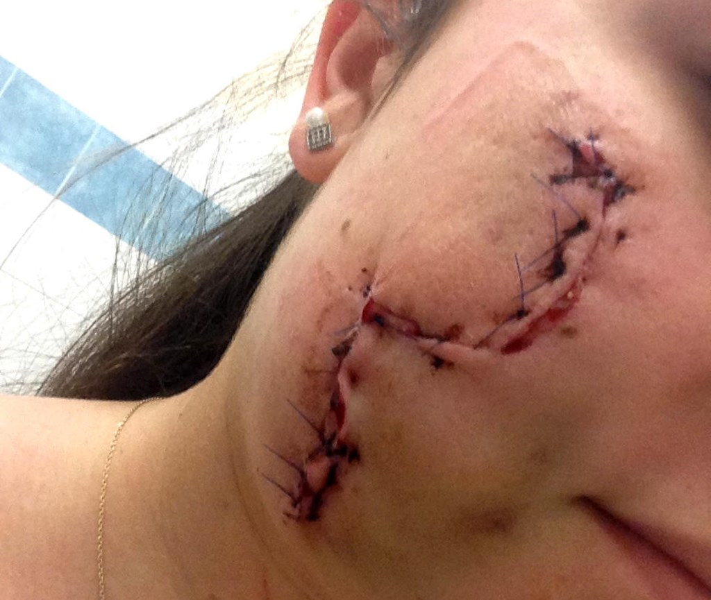 Zraniona kobieta z Sosnowca - fot. arch. prywatne